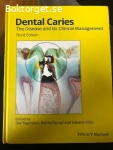 Dental Caries - The disease and its clinical managemant
